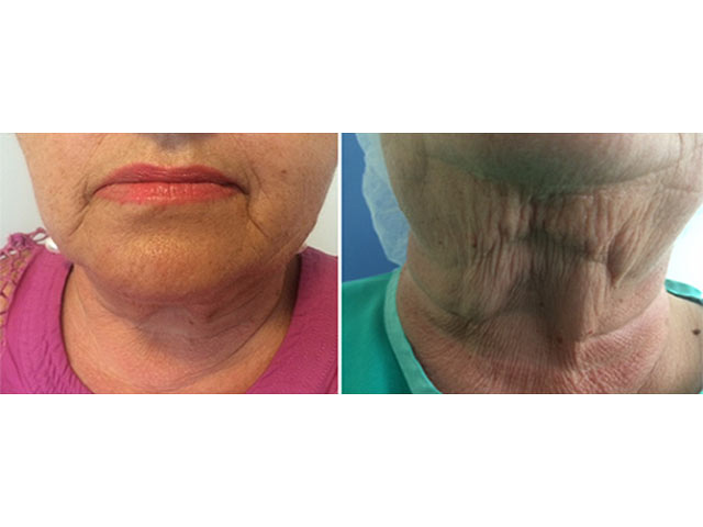 Neck Tite: подтяжка шеи без операции