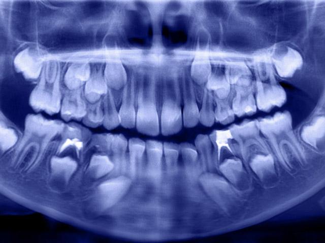 Ученые приблизились к открытию того, как заставить зубы вырасти заново