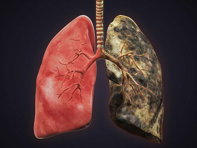 """Ученые: у тех, кто бросил курить, легкие """"волшебным образом"""" исцеляются"""