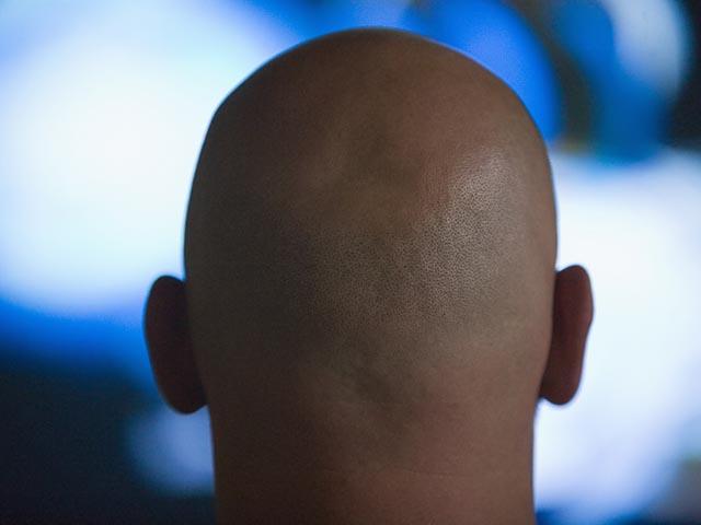 Лысина, появившаяся до 40 лет, сигнализирует об опасности развития рака простаты