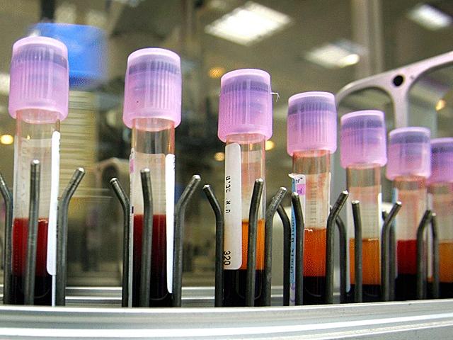 Израильский стартап подписал контракт с Пентагоном на разработку новых анализов крови