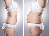 Новая методика, объединяющая липосакцию и подтяжку кожи