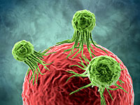 Исследователи Тель-Авивского университета: можно снизить риск развития раковых метастазов после операции