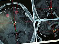 Клиническое исследование: новое лечение уничтожает раковые опухоли головы и шеи
