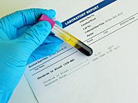 Исследование: биодобавки с хромом могут повышать риск развития рака